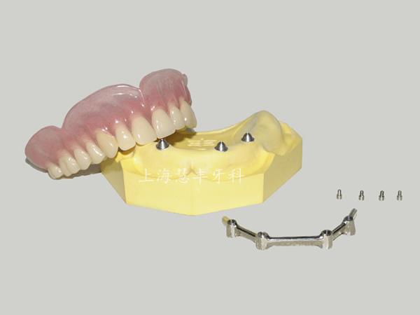 种植杆卡+覆盖义齿