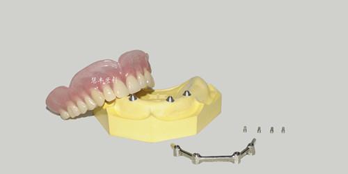 杆卡+覆盖义齿